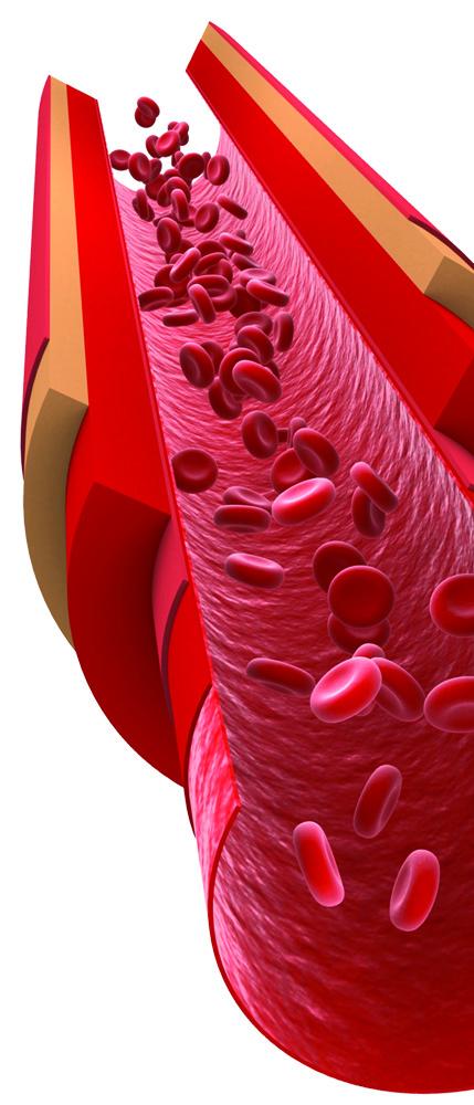 Arteries_NattoMK-7
